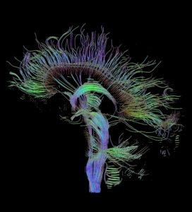 neuro-questions