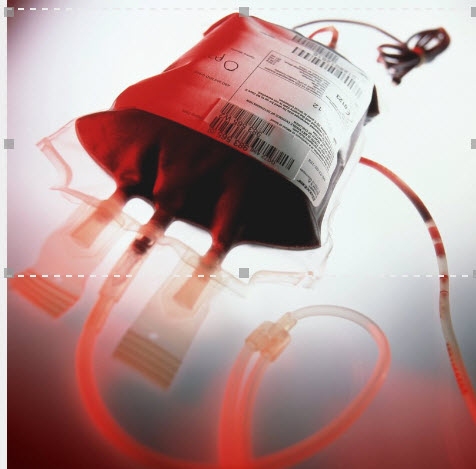 Transfusion Reaction and Interventions