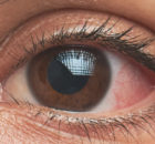 Eye Disorders NCLEX Topics