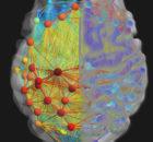 neurological NCLEX topics
